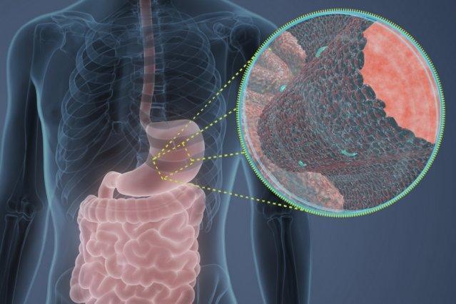 فراوری آنتی بیوتیک با بهره گیری از پروتئین هضم غذا