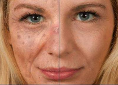 اگر ضدآفتاب نزنیم پوست مان به چه شکلی درمی آید