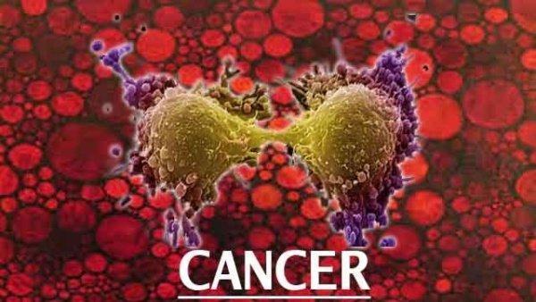 شایع ترین سرطان ها بین زنان و مردان خوزستانی کدامند؟