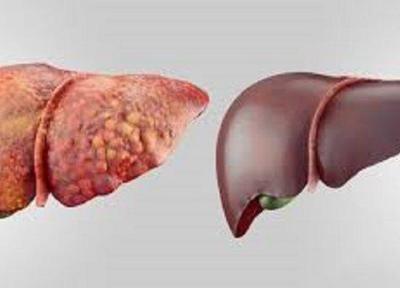 علل بروز کبد چرب، مراقب چربی خون و چاقی باشیم