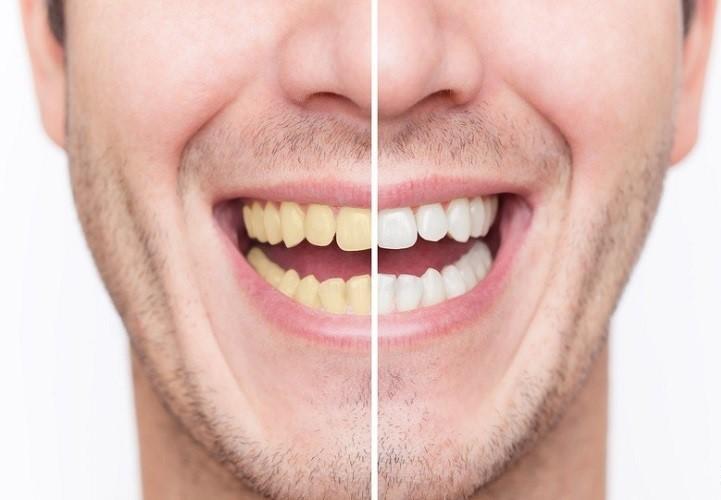 13 ماده غذایی که به طور طبیعی دندان های زرد را سفید و درخشان می کنند