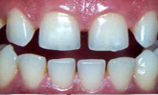 درمان فاصله های بین دندانی